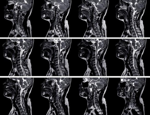 Colonne vertébrale c-irm montrant la masse à la face postérolatérale gauche du canal rachidien c4-5 montrant une masse solide kystique mixte avec rehaussement hétérogène Photo Premium