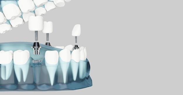 Composant D'implants Dentaires Et Espace Copie. Couleur Bleue Transparente. Illustrations 3d Photo Premium