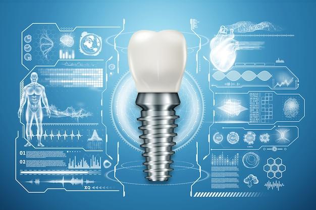 Concept De Remplacement Des Dents, Prothèses Dentaires Photo Premium