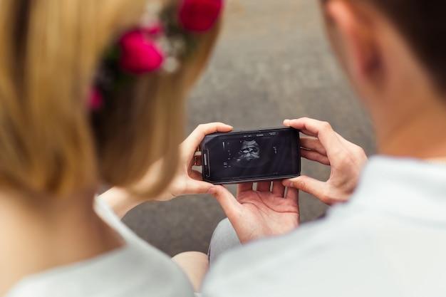 Couple Heureux Regarde L'échographie De Leur Bébé Photo Premium