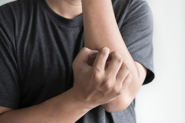 Démangeaisons bras gratter santé et médecine problème de santé Photo Premium
