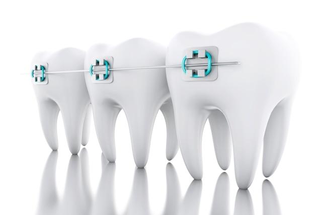 Dent 3d avec bretelles. Photo Premium