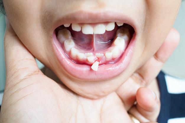 Dent de bébé des filles thaïlandaises asiatiques avec des dents abandonnées des gencives, problèmes de santé dentaire des enfants. Photo Premium