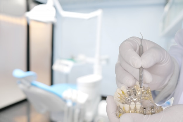 Le dentiste montre un modèle d'implant dans sa main / en cabinet ou en clinique. Photo Premium