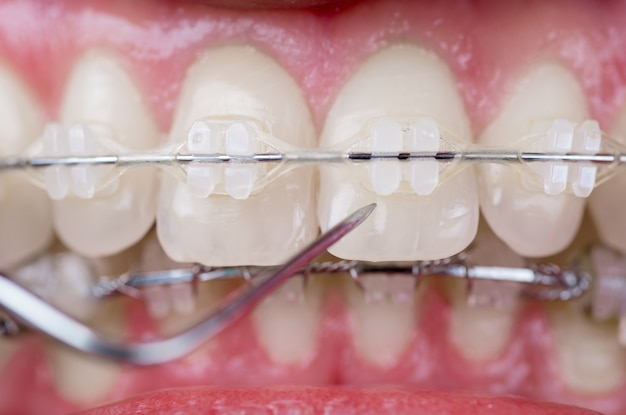 Dentiste Vérifiant Les Dents Avec Des Supports En Céramique à L'aide De La Sonde Au Cabinet Dentaire. Coup De Macro De Dents Avec Des Accolades Photo Premium
