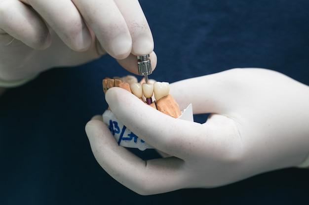 Dents En Céramique Avec L'implant Sur Un Modèle En Plâtre. Prothèses Sur Implants Dentaires. Concept De Dentisterie Orthopédique. Bridge En Céramique Sur Implants. La Main Du Dentiste Tient Une Mâchoire En Plâtre Avec Des Piliers Dentaires Photo Premium