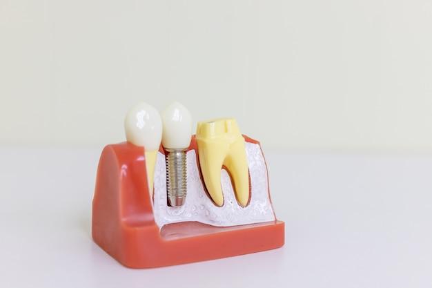 Dentsts dentaires, gencives, racines prothétiques dentaires enseignant modèle étudiant avec implant à vis en métal titane Photo Premium