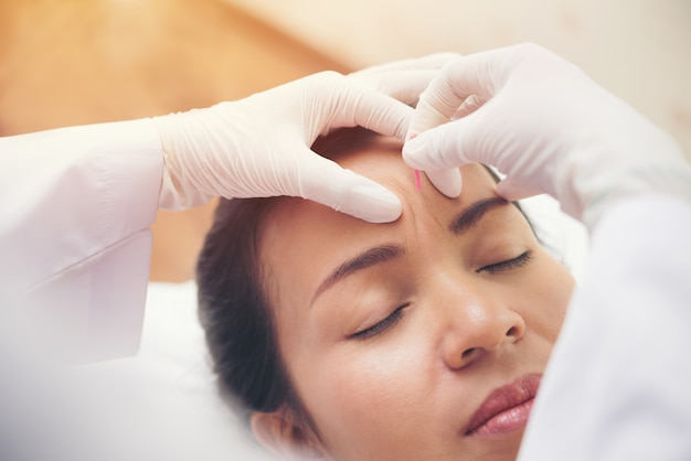 Détendue jeune femme asiatique recevant un traitement d'acupuncture dans un spa de beauté Photo Premium