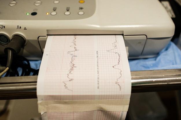 Dispositif médical d'électrocardiogramme montrant le graphique de santé d'un patient Photo Premium