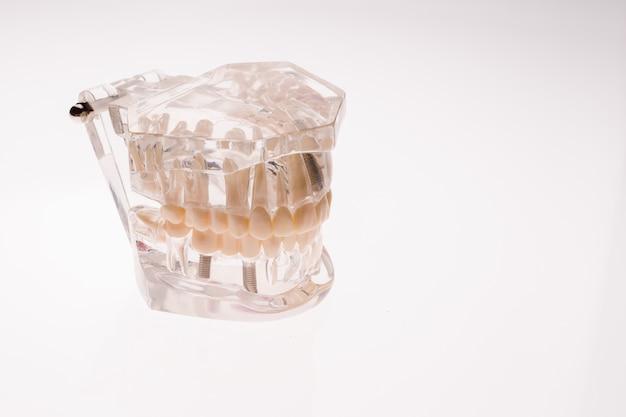 Disposition De La Mâchoire Des Prothèses Transparentes Sur Un Blanc Photo Premium