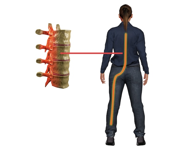 Douleur sciatique, symptôme de perturbation du nerf de la colonne vertébrale Photo Premium