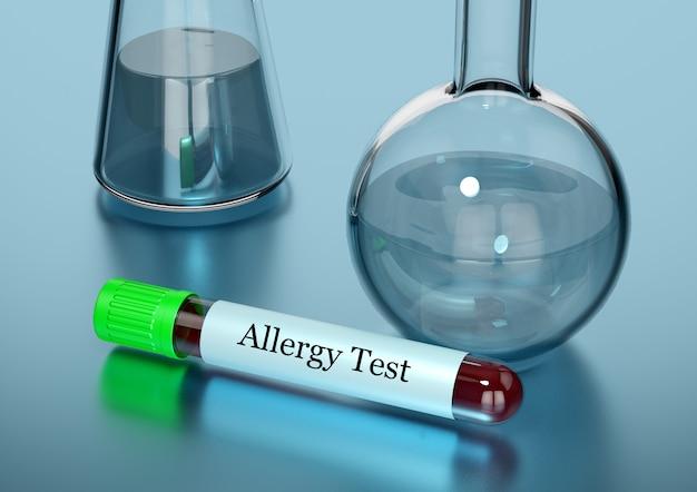 Échantillon de sang dans une éprouvette pour un test d'allergie en laboratoire Photo Premium