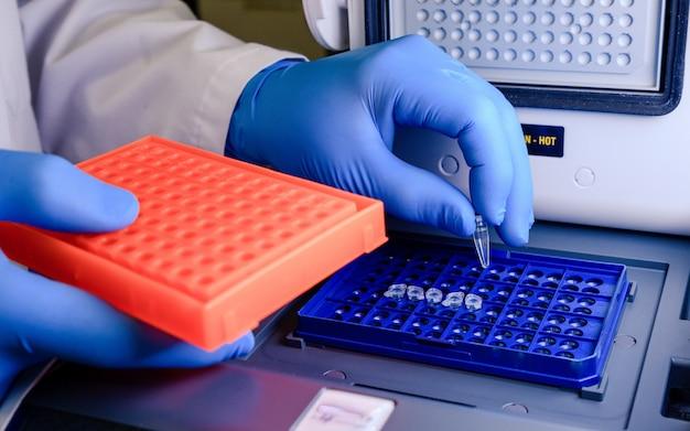 Un Employé De Laboratoire Organisant Des Pointes De Pipette Dans Un Récipient Bleu Pour Un Test De Coronavirus Photo gratuit