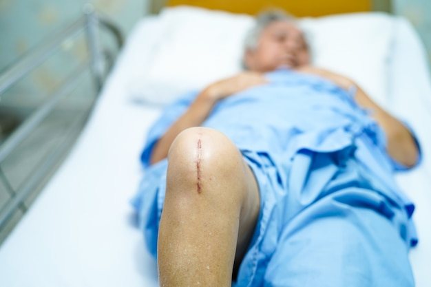 Femme âgée asiatique âgée patiente montre ses cicatrices remplacement total du genou chirurgical. Photo Premium