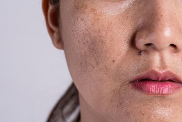 Femme à La Peau Problématique Et Aux Cicatrices D'acné. Concept De Soin De Problème. Photo Premium