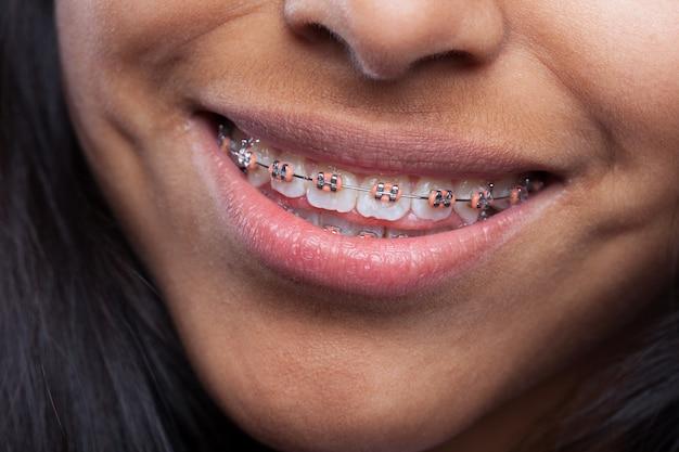 Femme souriante avec un appareil de dents Photo gratuit
