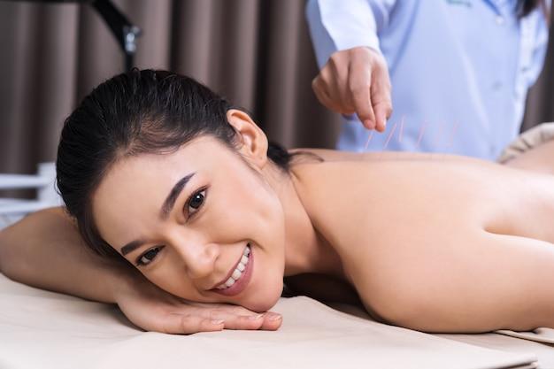Femme Subissant Un Traitement D'acupuncture Au Dos Photo Premium