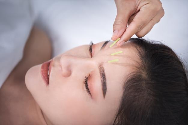 Femme Subissant Un Traitement D'acupuncture Sur La Tête Photo Premium