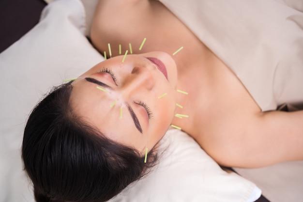 Femme Subissant Un Traitement D'acupuncture Sur Le Visage Photo Premium