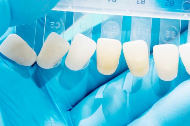 Fermez le guide des teintes pour vérifier la couleur de la couronne dentaire en clinique. Photo Premium