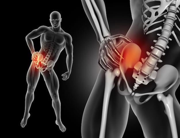 Figure masculine 3d tenant la hanche dans la douleur Photo gratuit