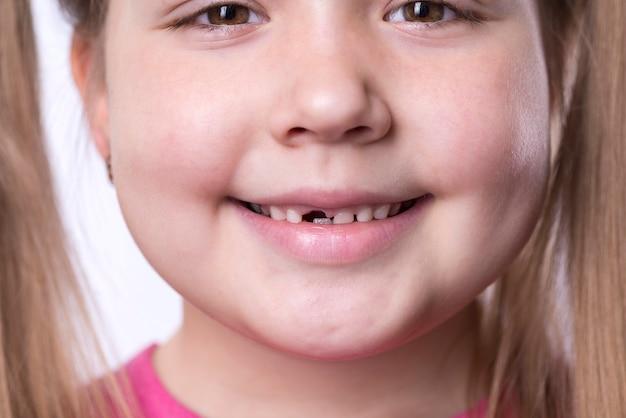 Une Fille D'âge Préscolaire Avec Ses Premières Incisives Adultes Photo Premium