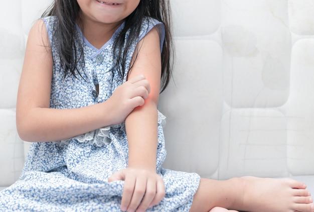 Fille gratter la démangeaison avec la main, concept avec soins de santé et médecine. Photo Premium