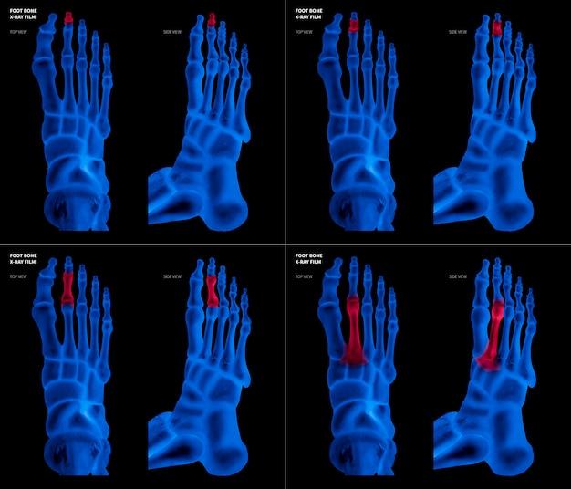 Film bleu aux rayons x montrant un os de pied long avec des reflets rouges sur différentes douleurs et zones articulaires Photo Premium
