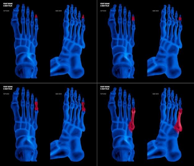 Film bleu aux rayons x représentant l'os du pied de l'orteil avec des reflets rouges sur la douleur et la zone articulaire Photo Premium