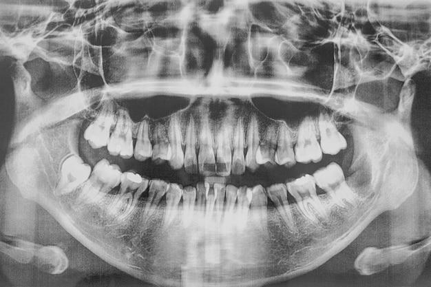 Film, cavité buccale et dents Photo Premium