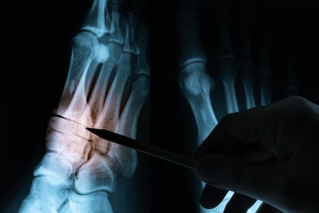 Film radiographique avec la main du docteur Photo Premium