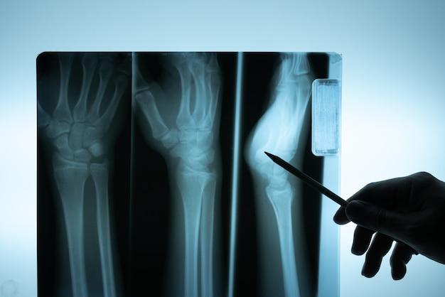 Film radiographique avec la main du médecin pour examiner Photo Premium