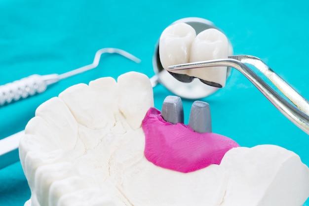 Fixer le support de dent modèle implan avec bridge fixe implan et couronne. Photo Premium