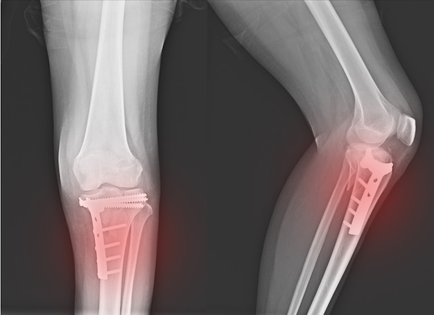 Fracture du genou par rayons x au tibia proximal et fracture après fixation du tibia proximal. Photo Premium