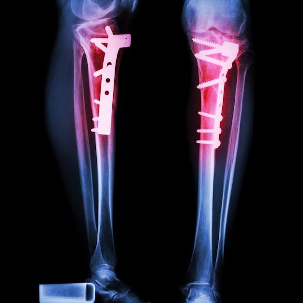 Fracture du tibia (os de la jambe). il a été opéré et réparé en interne par Photo Premium