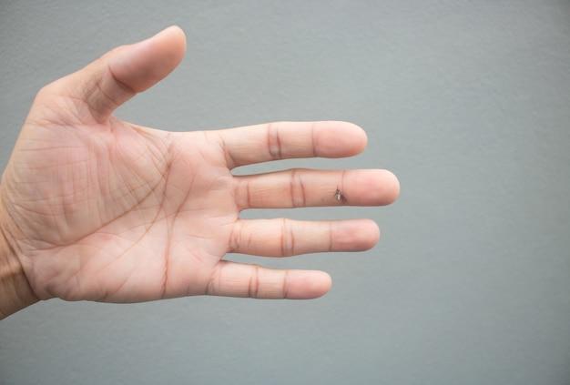 Frappez le moustique avec la main Photo Premium