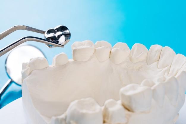 Gros plan du support de dent modèle implan avec bridge implan et couronne. Photo Premium