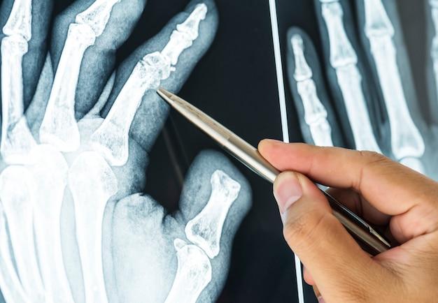 Gros plan d'un film radiographique d'un doigt fracturé Photo gratuit