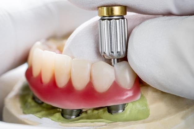Gros Plan / Implants Dentaires Soutenus Par Prothèse Sur Fond Bleu / Vis Conservée / Restaurations Implantaires. Photo Premium