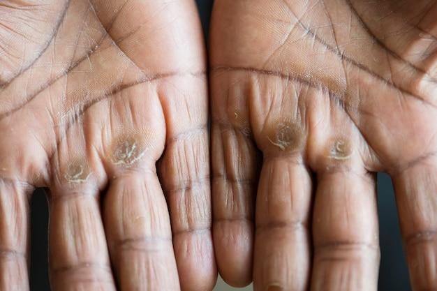Gros plan de mains noires calleuses Photo gratuit