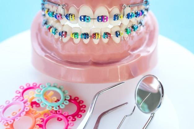 Gros plan des outils de dentiste et modèle orthodontique Photo Premium
