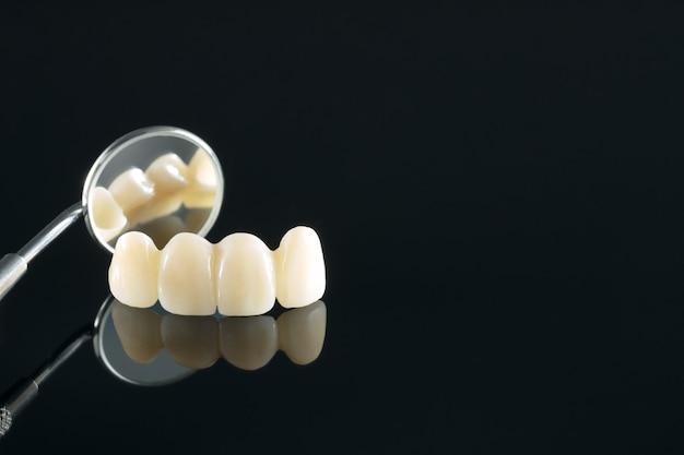 Gros Plan / Prosthodontie Ou Prothèse / Couronne Dentaire Et équipement De Dentisterie Implantaire De Bridge Et Restauration De Modèle Express Fix. Photo Premium