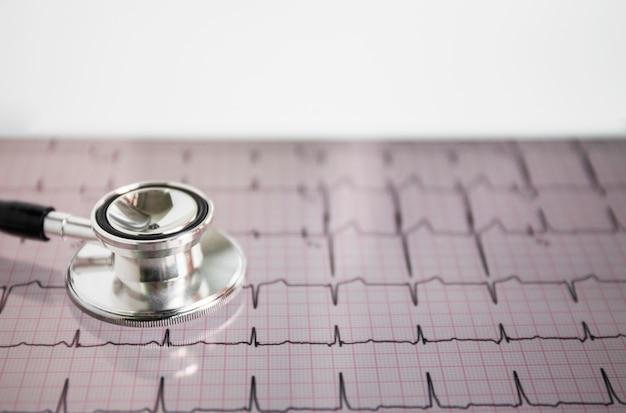 Gros plan, de, stéthoscope, sur, coeur, bat, cardiogramme Photo gratuit