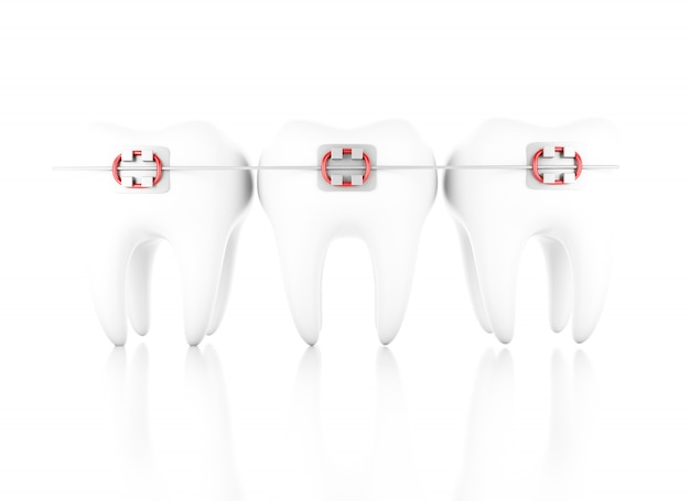 Illustration 3d. dent avec des accolades. concept de soins dentaires. fond blanc isolé Photo Premium