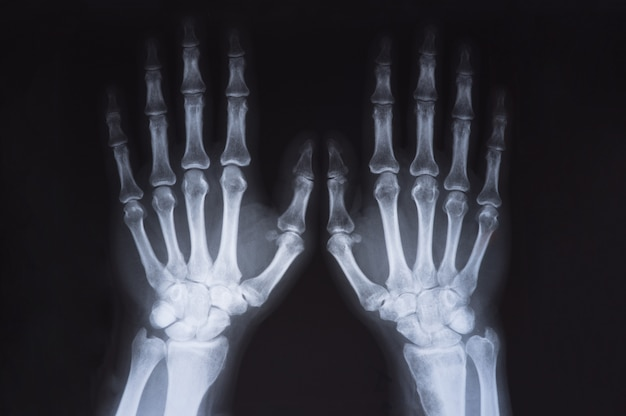 Image des mains des rayons x médicaux Photo Premium