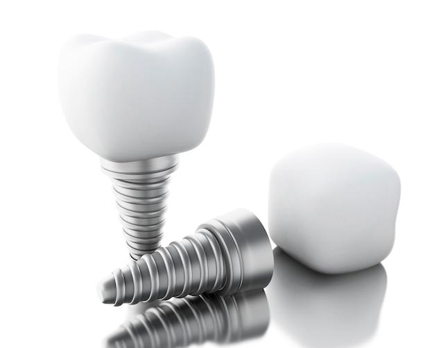 Implant dentaire 3d. Photo Premium