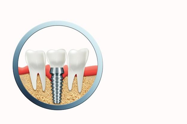 Implant Dentaire, Tenon Gingival En Acier Inoxydable Photo Premium