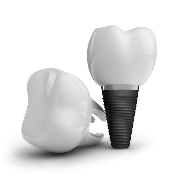 Implant dentaire Photo Premium