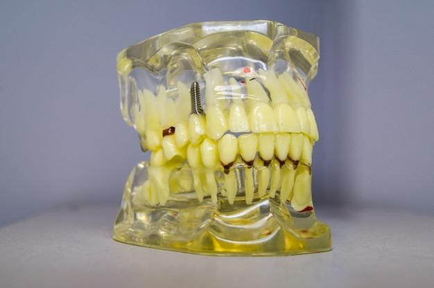 Implants dentaires et dents dans le crâne Photo Premium