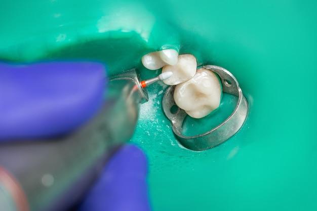 Instruments Dentaires Des Mains Gantées Tiennent La Bouche De La Ponceuse Fermée Avec Une Plaque De Latex Verte Gros Plan Photo Premium